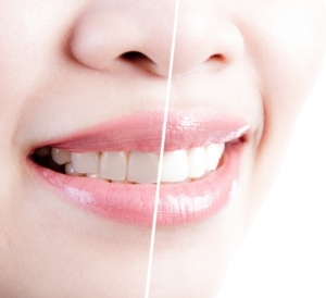 Teeth Whitening in West Ridge